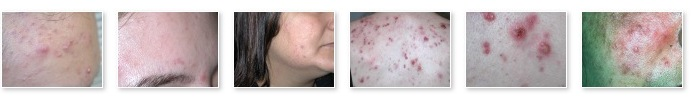 pictures of acne