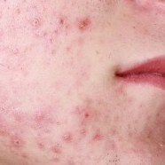 Accutane Benefits and Side Effects
