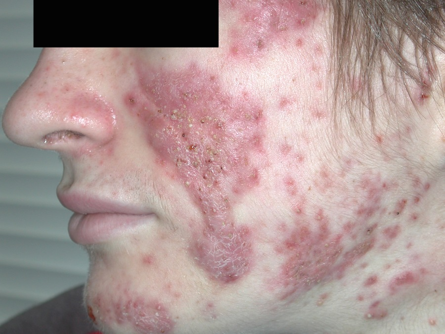 Severe Acne Scars Treatment Acne Pictures - Index
