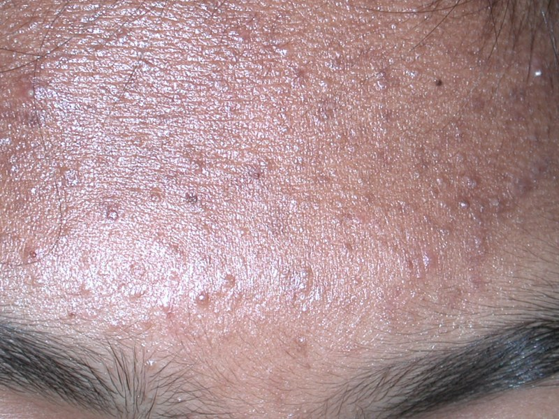 Comedo comedones whiteheads blackheads Authoritative facts about the skin from DermNet New Zealand