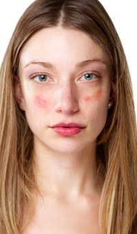 what foods cause acne flare ups